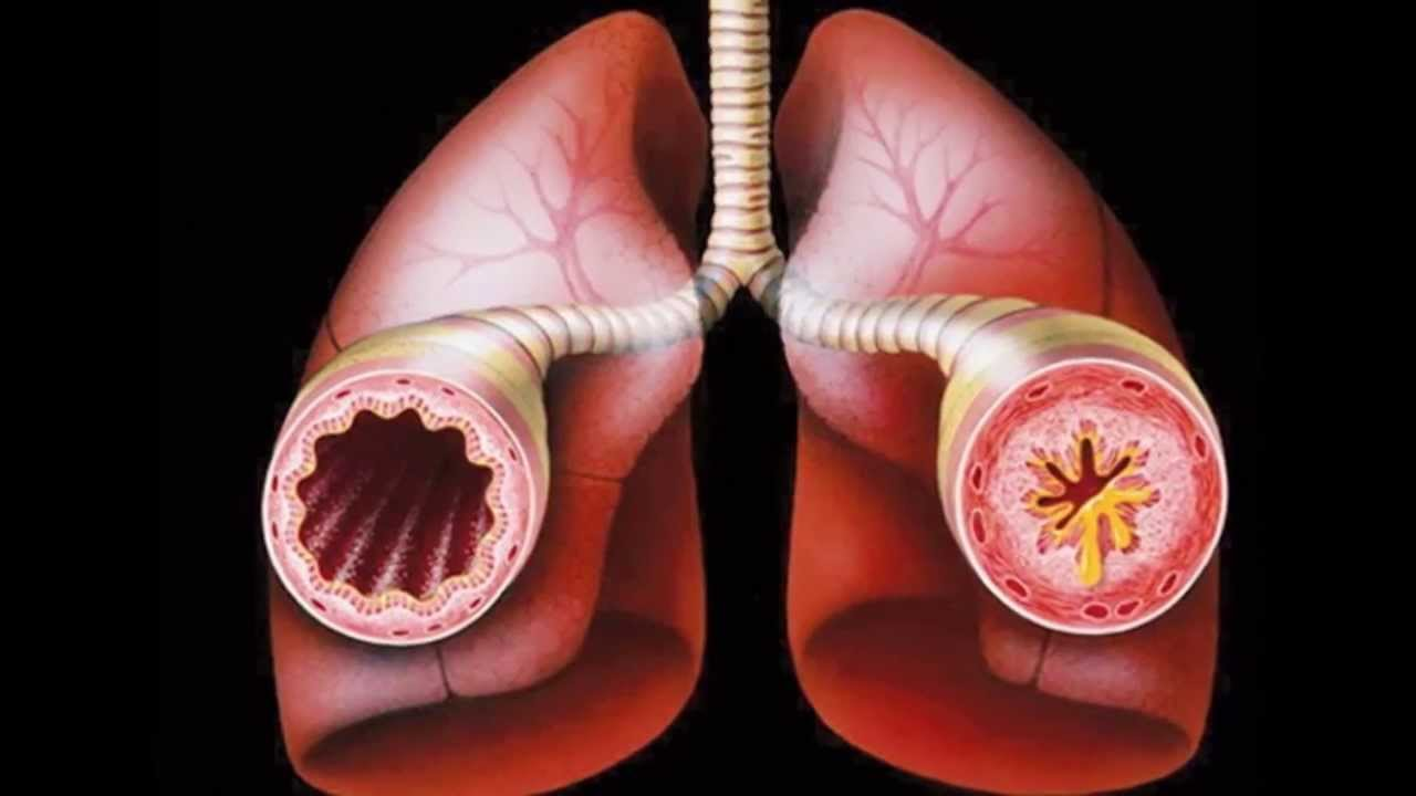 bronchitis asthma Asthmatic bronchitis information including symptoms, diagnosis, misdiagnosis, treatment, causes, patient stories, videos, forums, prevention, and prognosis.