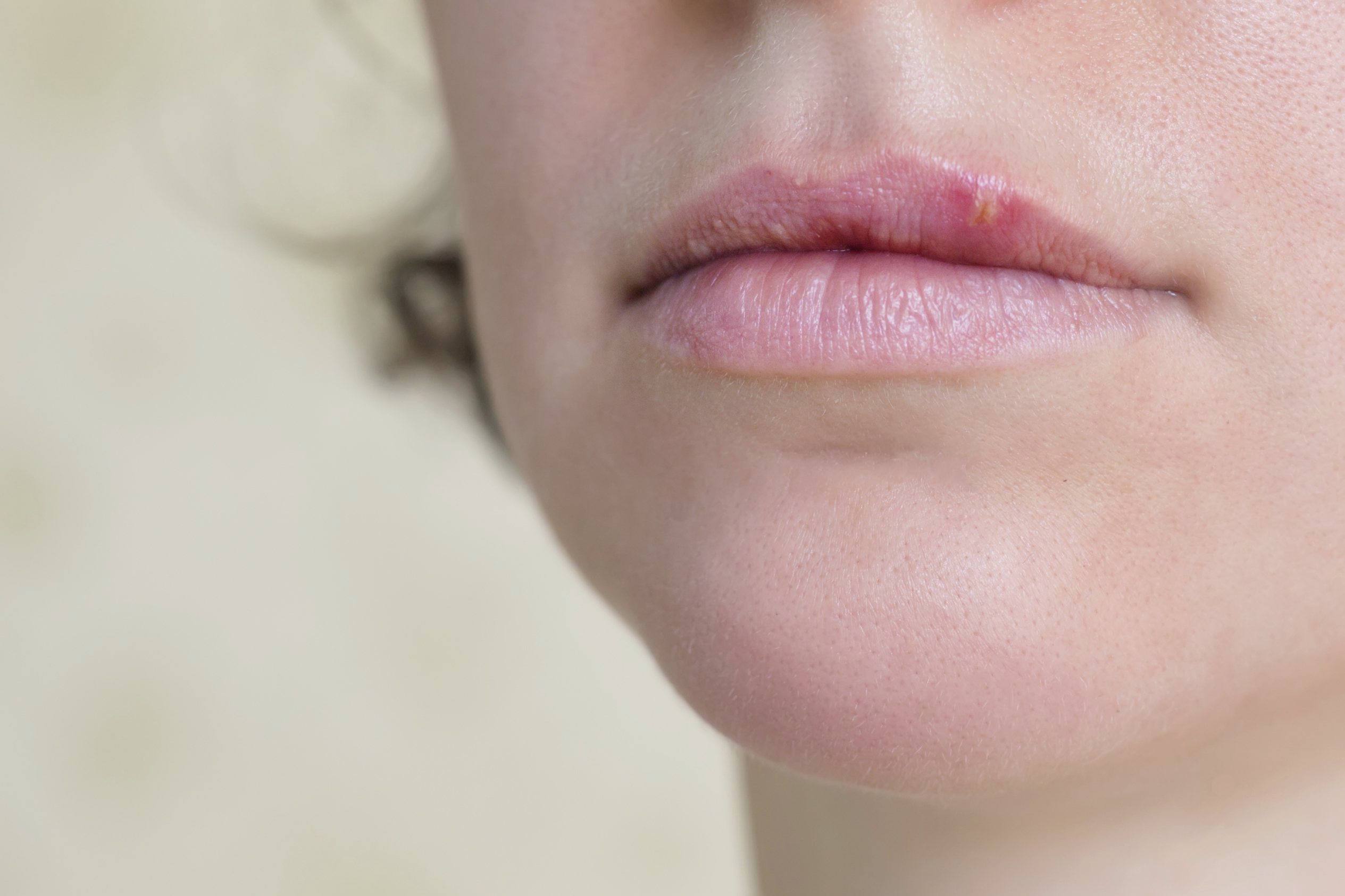How to Remove and Get Rid of Dark Spots on Lips - eTopical Sun spots on lips pictures